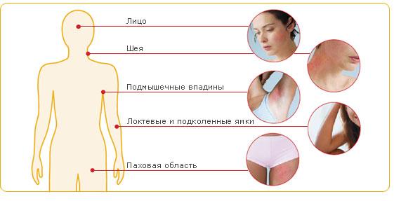 Дерматозы при беременности
