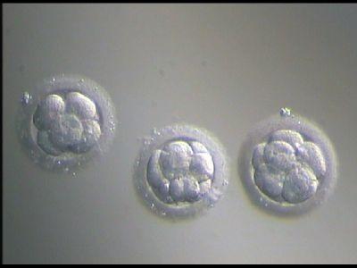 Замораживание и пересадка ткани яичников