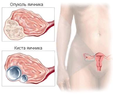 Кисты и опухоли яичников