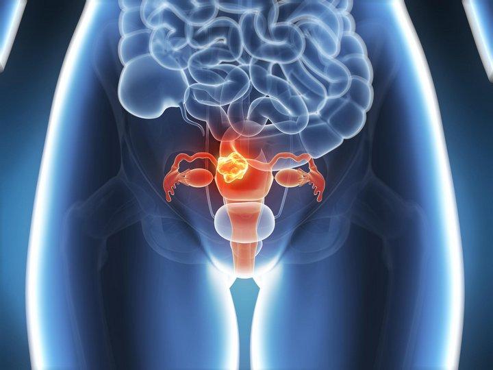 Эрозия, ВПЧ и рак шейки матки: О раке шейки матки