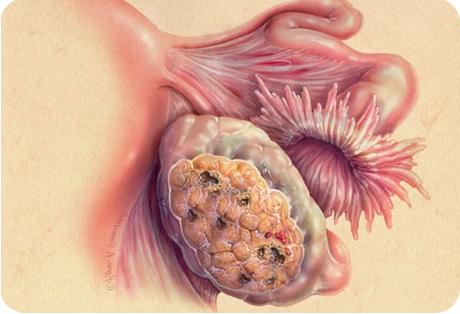 Новое о раке яичников