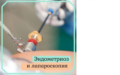 Эндометриоз и лапароскопия